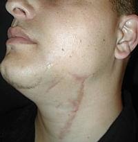 לקות אדומות באזור הצוואר