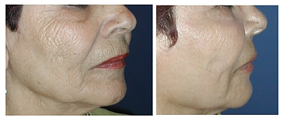 עור מקומט אחרי טיפול אחד בלייזר