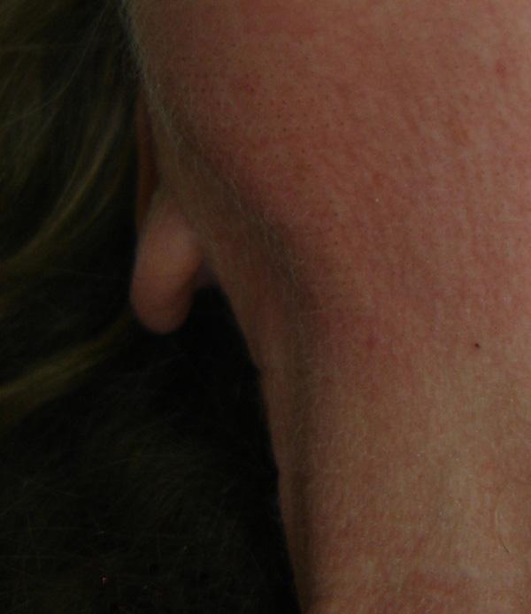 טיפול בצוואר בלייזר פיקסל