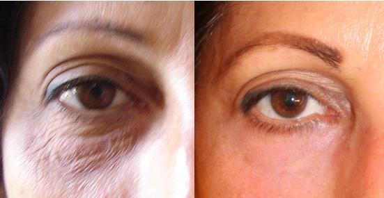לפני ואחרי טיפול ברשת פיקסל