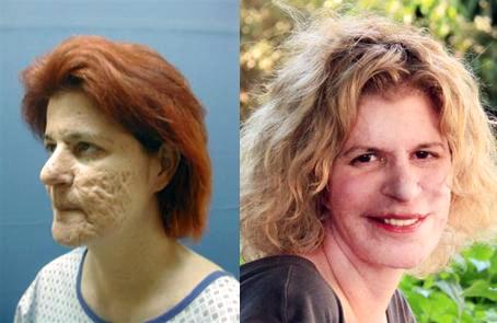 לייזר פילינג לפני ואחרי