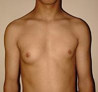 רקמת שד באזור העטרה אצל גברים