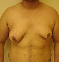רקמת שד שומן ועודף עור