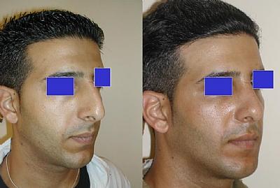 תיקון האף לאחר שבר