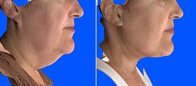 חיטוב והידוק של הצוואר באמצעות וייזר
