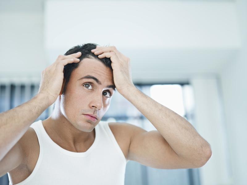 השתלות שיער