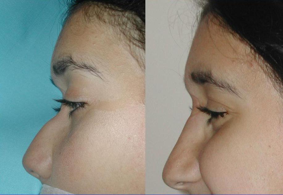 מילוי של שקע בשורש האף באמצעות ביואלקמיד