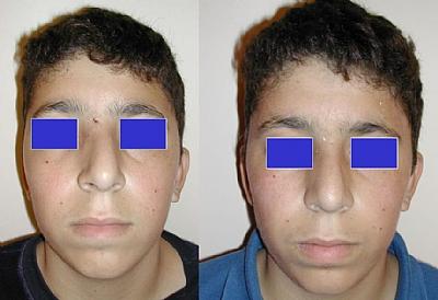 תיקון של שבר באף