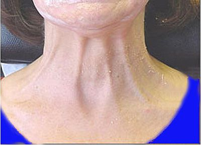 הזרקת בוטוקס בצוואר