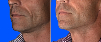הזרקה של חומצה היאלורונית מעדנת את הקמטים בפנים של גבר ומעניקה מראה צעיר ורענן