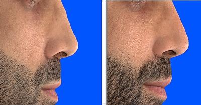 תיקון של ניתוח אף לא מוצלח באמצעות חומצה היאלורונית המקנה לאף מראה טבעי